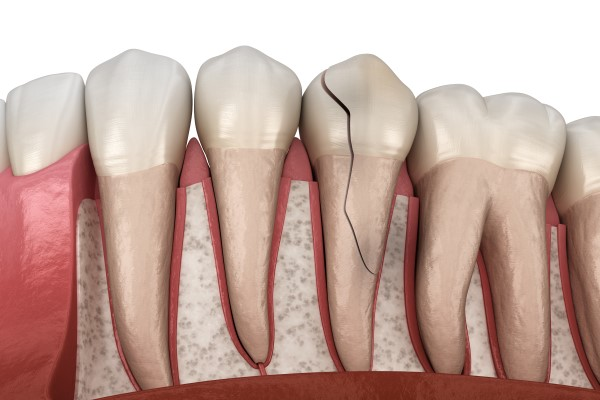 Dental Treatment Options To Repair A Cracked Tooth