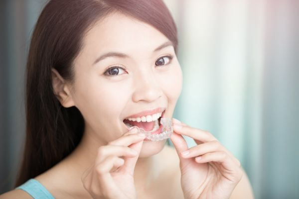 What Happens During An Invisalign® Appointment?