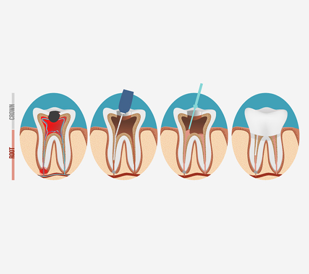 Houston Root Canal Treatment
